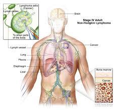 non hodgkin lymphoma treatment pdq u2014patient version