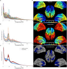 frontiers slowing of hippocampal activity correlates with