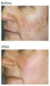 intense pulsed light tattoo removal 51 best ipl intense pulsed light skin rejuvenation images on