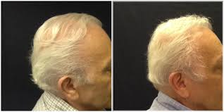 Platelet Rich Plasma Hair Loss Side View 643 Grafts Before And After 9 Month Post Neograft And