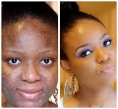 Red Flaky Skin Around Nose And Eyebrows How To Cover Dry Flaky Skin Quick Makeup Tip Youtube