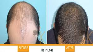 Best Product Hair Loss Best Foods For Hair Loss Treatment 2016 2017 Youtube