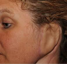 cancer of the ear cartilage johns surgeons use woman s own tissue to rebuild ear lost