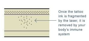how does laser tattoo removal work juliet laser