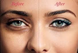 before and after under eye concealer