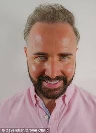 paddy mcguinness hair implants gogglebox s chris steed spends 8 000 on hair transplant daily