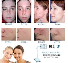 Light Therapy For Skin Orleans Dermatology And Laser Therapies Photodynamic Therapy