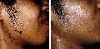 laser hair removal for asian and dark skin good skin days leeds