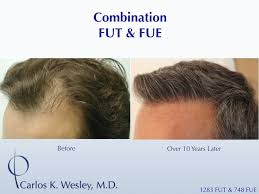 prescreened hair transplant physicians hair loss q a part 5