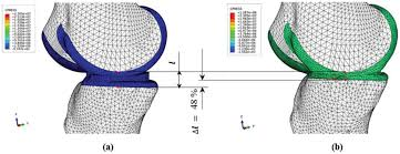 Diagram Of Knee Anatomy Preliminary Analysis Of Knee Stress In Full Extension Landing
