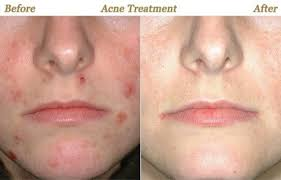 light therapy for acne scars what is the cost of laser treatment quora