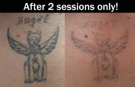 laser tattoo removal 2 sessions tattoo love