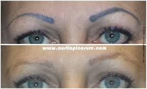 eyebrow permanent makeup easily removed via picosure laser tattoo