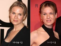 what happened to renee zellweger u0027s face and why do we care