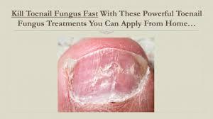 yellow nails toe nail fungus treatment kill toenail fungus fast with this powerful toenail fungus