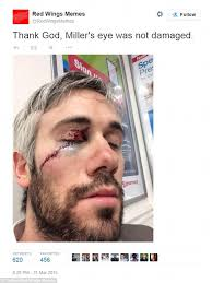 Red Wings Meme - red wings drew miller lucky to have eyesight after skate