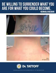 tattoo removal inc back of neck tattoo removal before and after pics yelp