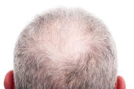 for hair hair transplant treatment for hair loss qconline