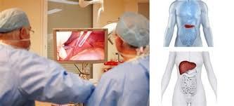 pose d une chambre implantable exceptionnel pose de chambre implantable 11 chirurgie du foie et