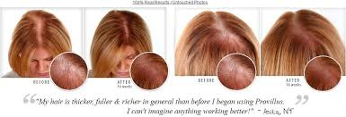 thinning hair in women on top of head top 10 reasons for hair loss femsociety