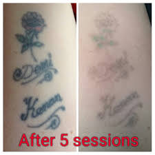 pin by sarah home on laser tattoo removal from the missing ink