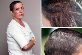 Hair Extensions In Peterborough by Horrified Mum Forced To Shave Head After Hair Extensions Were