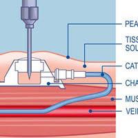 chambre d implantation pour chimio le pac dans tous ses états l expérience en partage