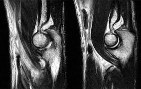Mri Sectional Anatomy Distal Biceps Tendon Rupture Elbow U2013