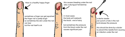 What Is Dead Tissue Called Nailbed Injury U0026 Broken Finger Tip U2014 Bone Talks