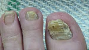 toe nail fungus cure 30 months progress youtube