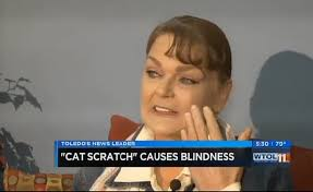 Illnesses That Cause Blindness Woman Goes Blind In One Eye After Getting Licked By Cat Cbs News