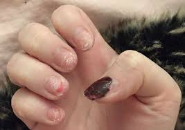 this has shared the reality of an acrylic nail addiction