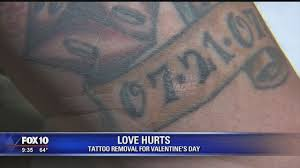 local tattoo removal company offers discount on sweatheart tattoos
