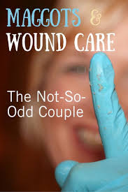 Wound Care Nurse Job Description 12 Best Wound Care Images On Pinterest Nursing Schools Wound
