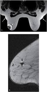 mri guided biopsy breast breast magnetic resonance imaging radiology key
