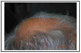 download hair loss ebook born again hair com stop hair loss and grow new hair with the