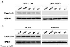macrophage phenotypic subtypes diametrically regulate epithelial