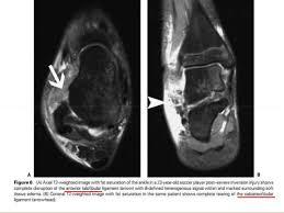 Ankle Ligament Tear Mri Foot Pathology Mri Part 1 Shorouk Zaki