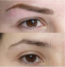 alopecia eyebrows trichotillomania eyebrows