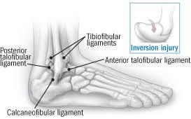 High Ankle Sprain Anatomy Recovering From An Ankle Sprain Harvard Health