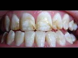 Extreme Remedio caseiro para dor de dente | você precisa conhecer - cura  @UZ63