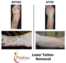 half sleeve tattoo removal yelp