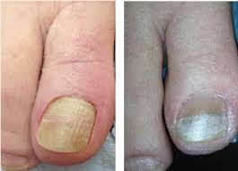 a closer look at cosmetic solutions for nails podiatry today