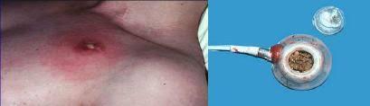 chambre à cathéter implantable bonnes pratiques d utilisation d une chambre à cathéter implantable