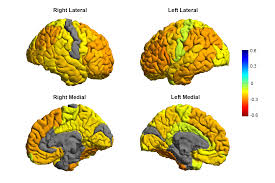 Brain Mapping New Mri Study Leads To Roadmap Of Bipolar Brains Psychology Today