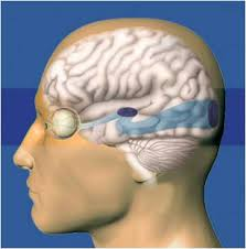 Can Stroke Cause Blindness Stroke And Vision Loss Novavision Sight Science