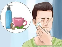 Blind Pimples On Chin How To Get Rid Of A Blind Pimple Overnight 14 Steps
