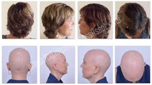 hair growth after chemo pictures album archive female cancer chemotherapy induced hair loss