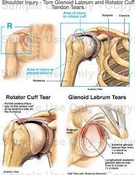 Anatomy Of Rotator Cuff Shoulder Injury Torn Glenoid Labrum And Rotator Cuff Tendon
