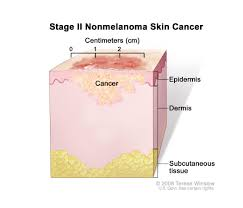 skin cancer treatment pdq u2014patient version national cancer